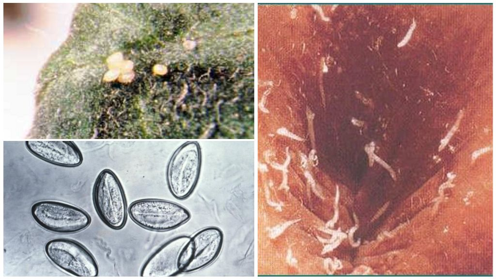 Острицы и их яйца