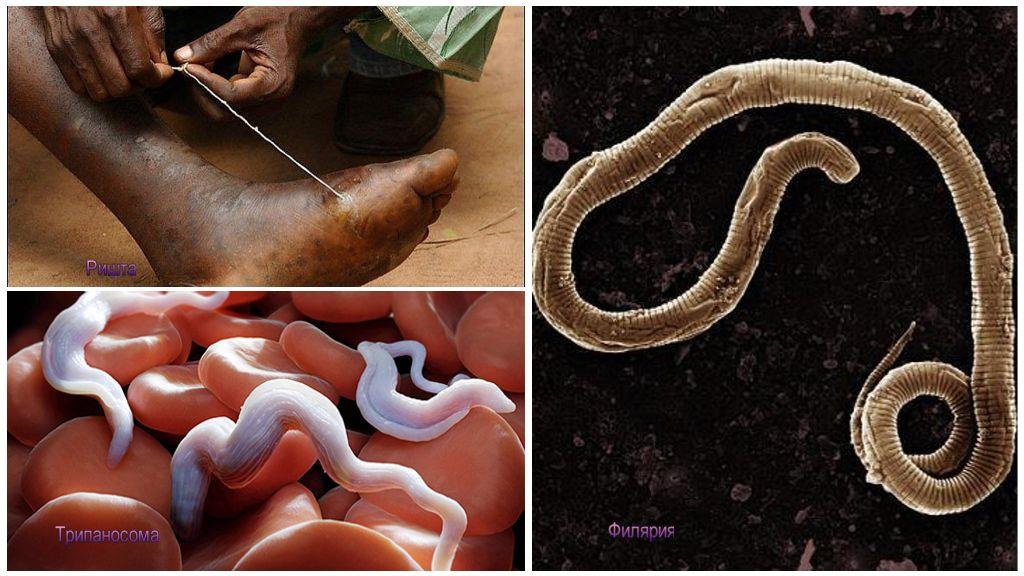 Опасные паразиты человека