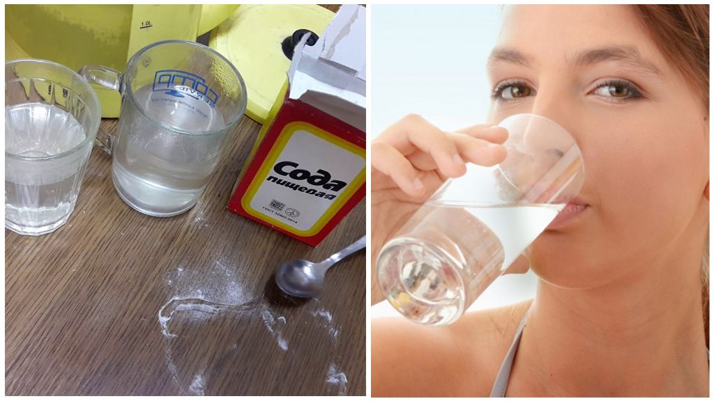 Прием раствора соды внутрь