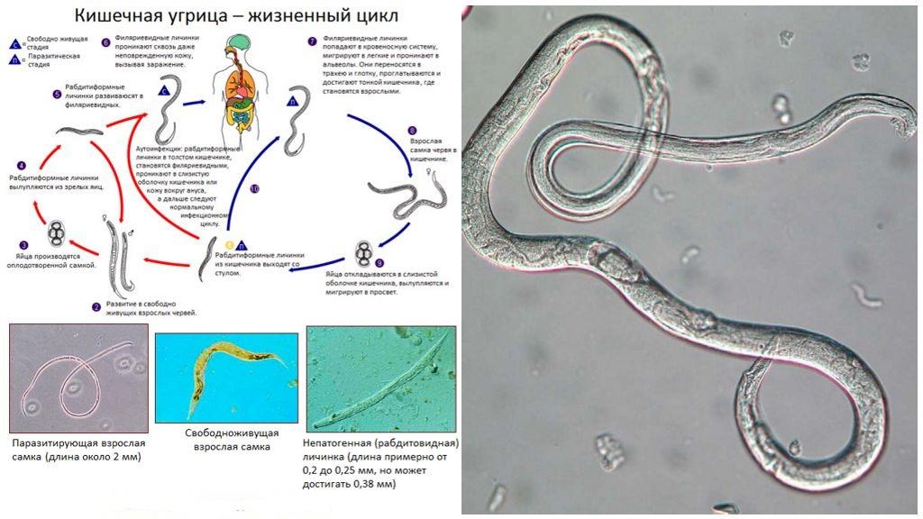Цикл развития кишечной угрицы