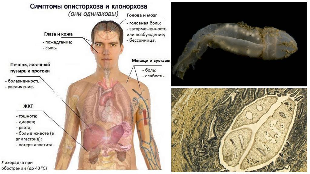 Симптомы клонорхоза