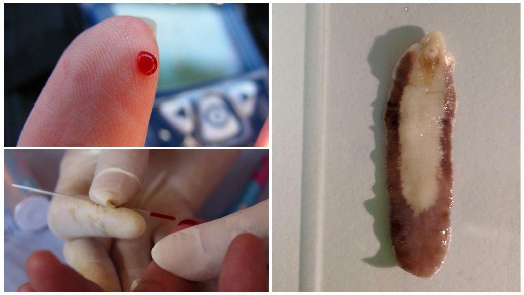 Общий анализ крови на описторхоз