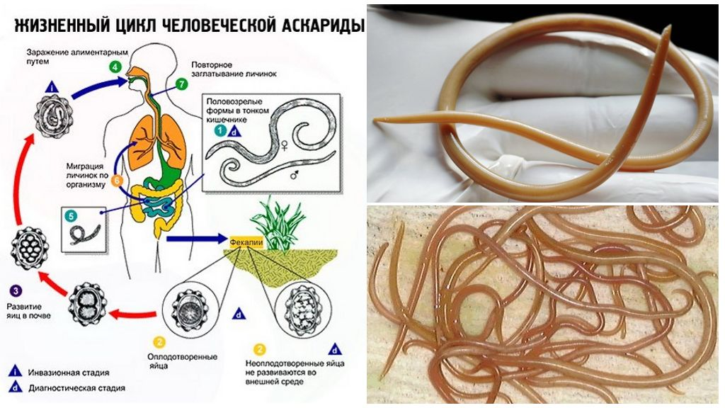 Симптомы и лечение аскаридоза у взрослых