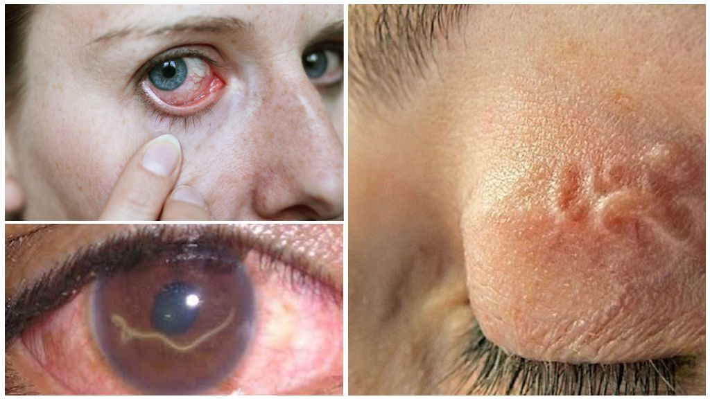 Симптомы и лечение глистов в глазах