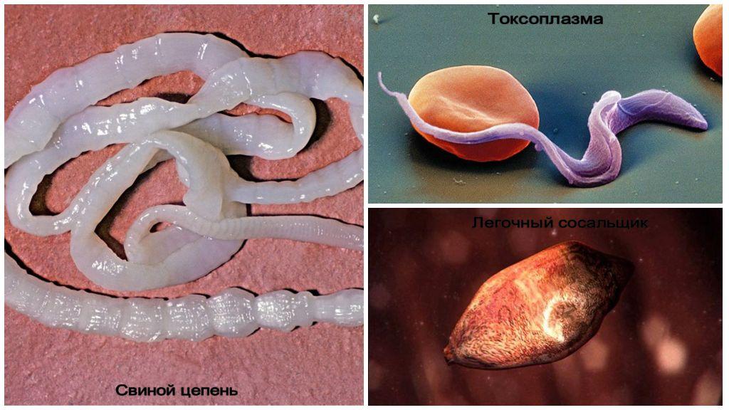 Симптомы и лечение паразитов в легких человека
