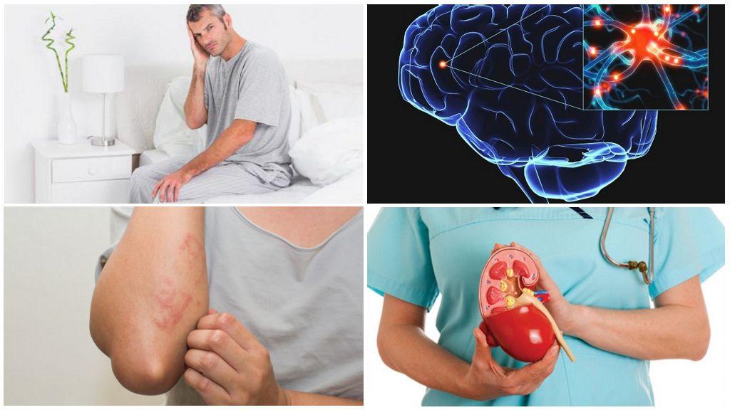 Сопутствующие заболевания при лямблиозе