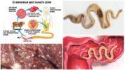 Жизненный цикл развития бычьего цепня