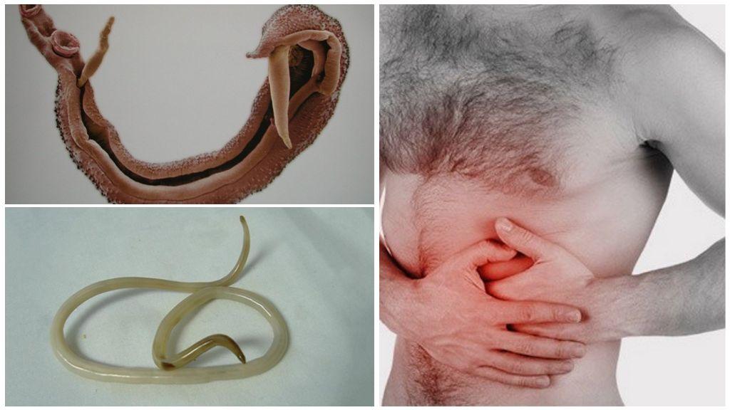 Шистосомы в поджелудочной железе