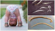 Аскариды и острицы у ребенка