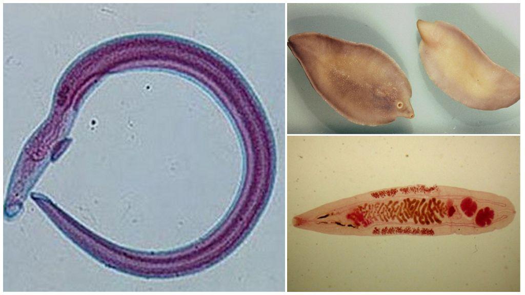 Как выглядят различные виды глистов у человека