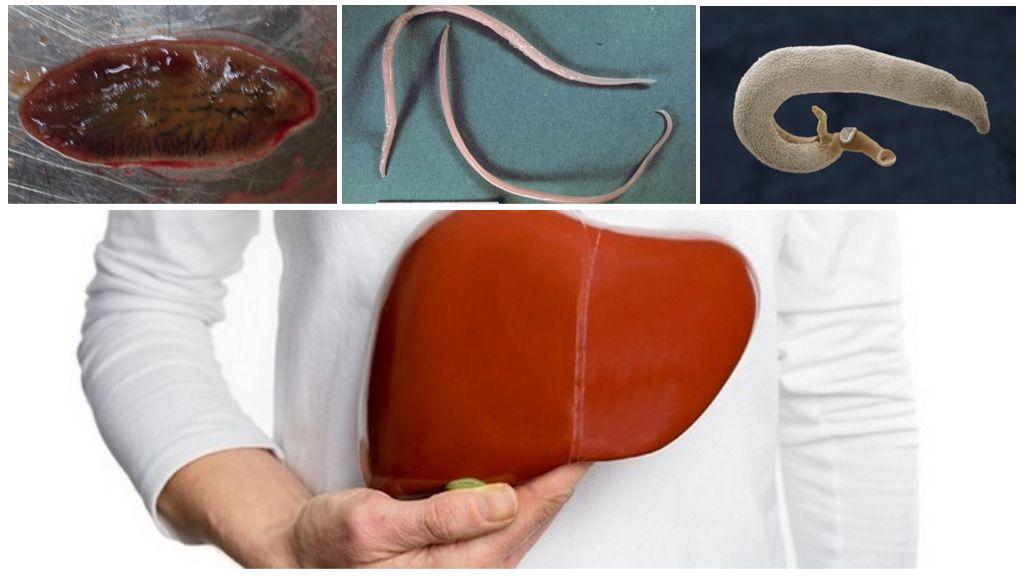 Симптомы и лечение паразитов в печени человека