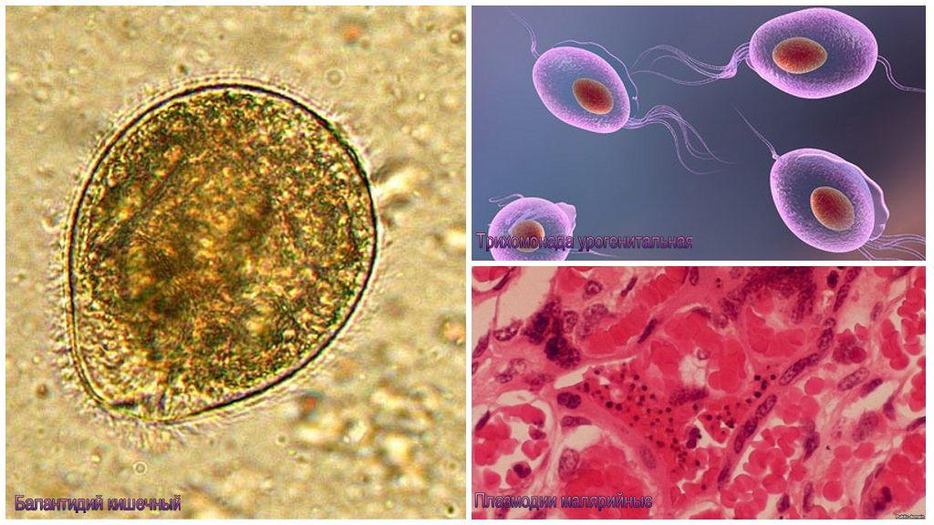Какие паразиты живут в организме человека, фото с описанием