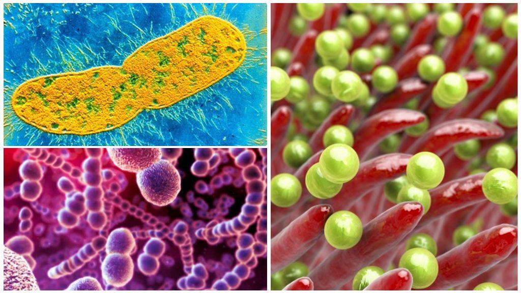 Факультативные паразиты: стафилококк, стрептококк, клебсиелла