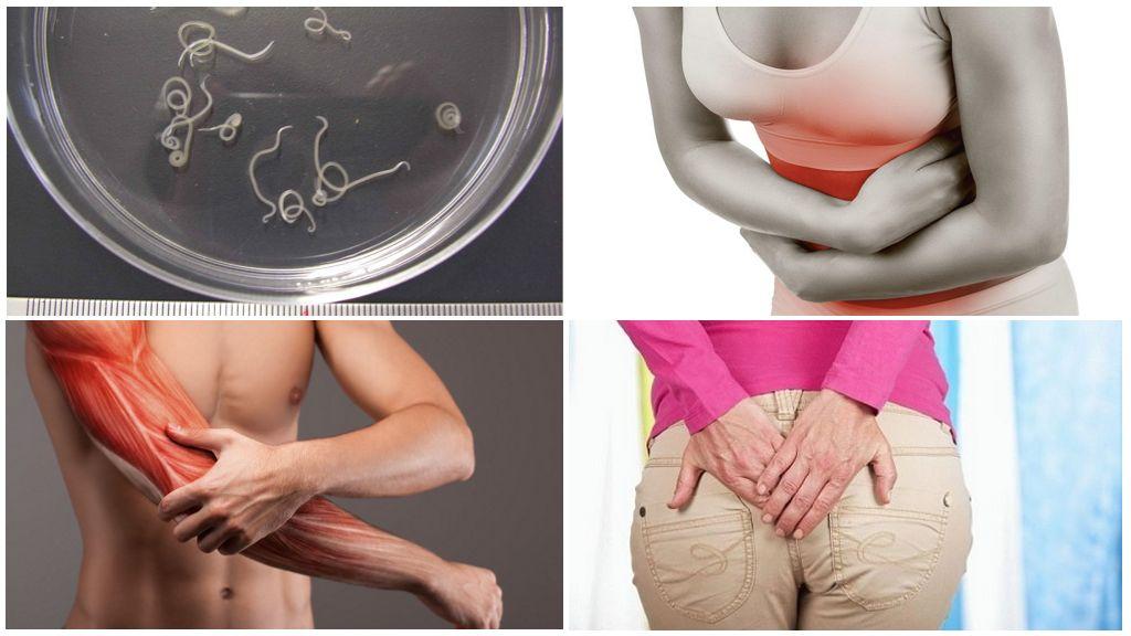 Симптомы присутствия глистов в организме