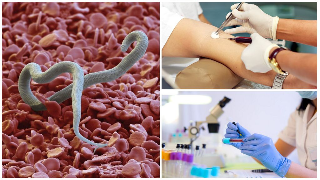 Диагностика крови на гельминтоз