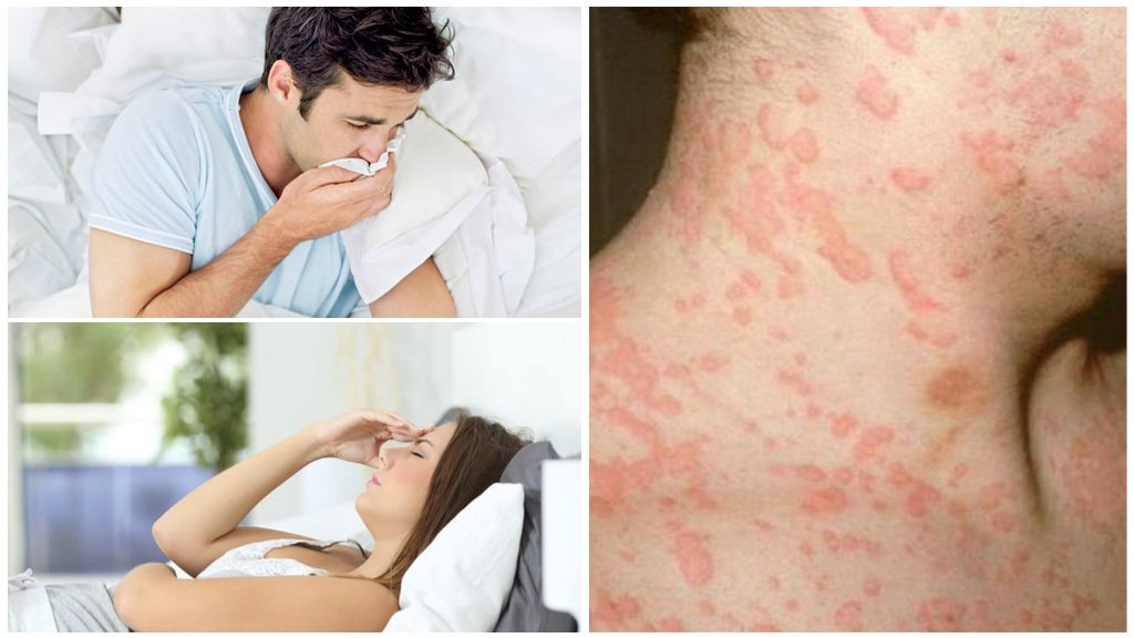Симптоматика заражения паразитом