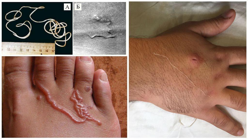 Признаки и лечение гельминтоза у взрослых