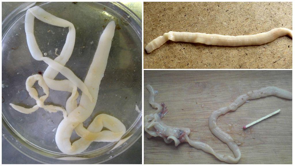 Ленточные черви у человека