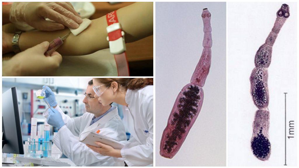Анализ крови на эхинококкоз