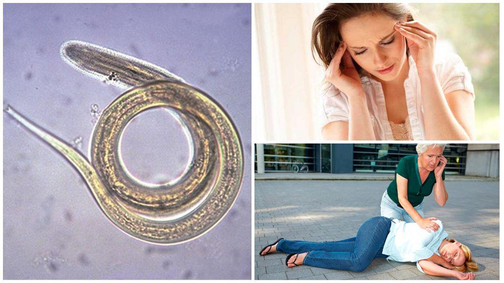 Симптомы стронгилоидоза